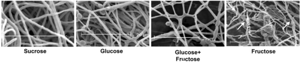 Scanning electron micrographs of fungal mycelium grown on various feedstocks